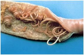 roundworms cross section